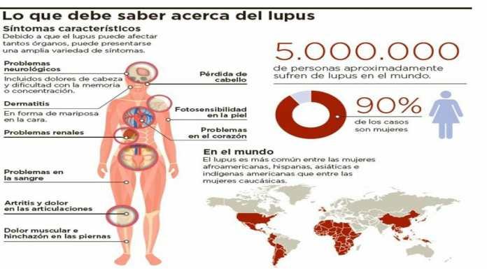 Síntomas Lupus