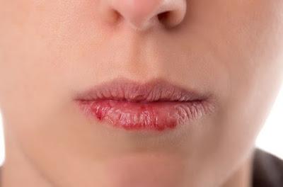 Penyebab dan Cara Mengatasi Mulut Kering