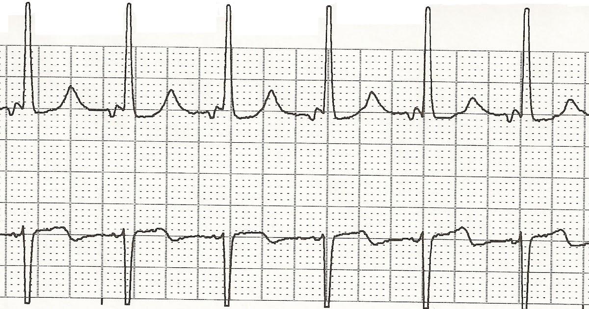 Float Nurse: EKG Rhythm Strip Quiz 48
