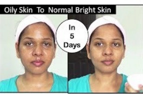 CHANGE OILY SKIN INTO NORMAL SKIN IN JUST 5 DAYS |Natural Way