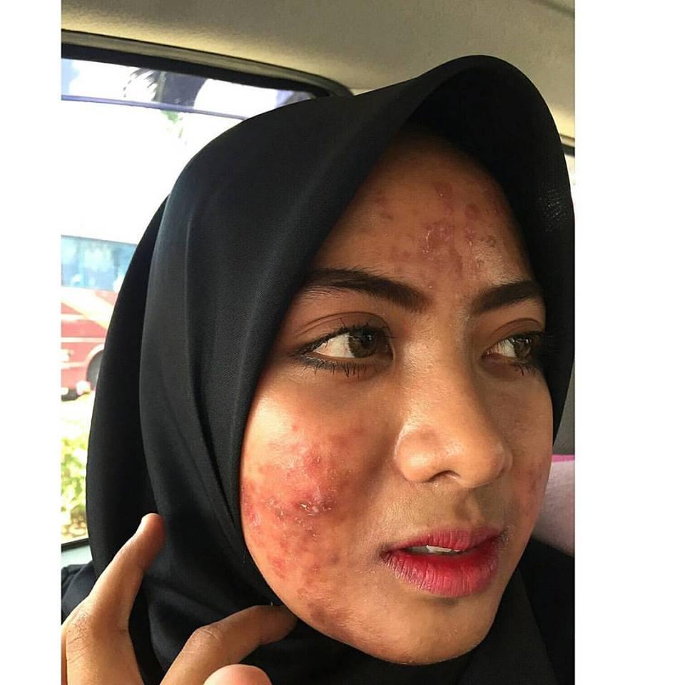 peeling untuk wajah