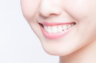 Tips Cara Ampuh Memutihkan Gigi Secara Alami