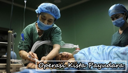 Biaya Operasi Kista Payudara