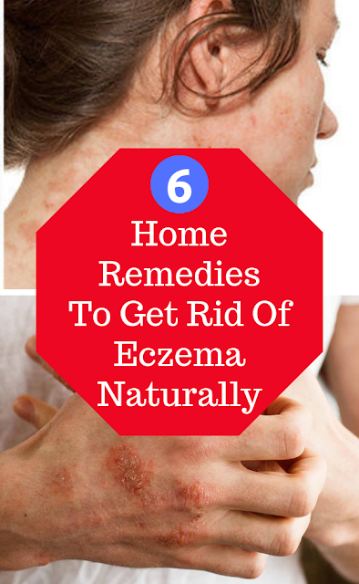 Home Remedies To Get Rid Of Eczema Naturally
