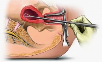 definicion de legrado uterino