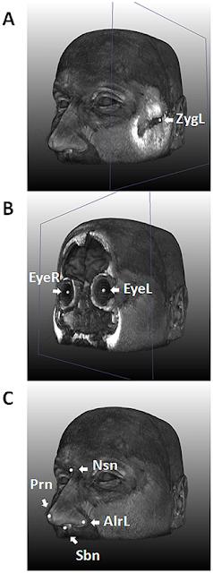 Penemuan Lima Gen Pembentuk Morfologi Wajah Manusia Penemuan Lima Gen Pembentuk Morfologi Wajah Manusia