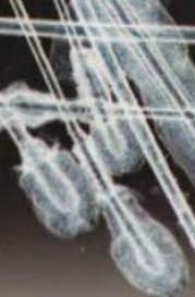 Tricograma. Estudio microscópico del pelo.
