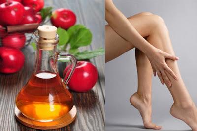vinagre de manzana para varices