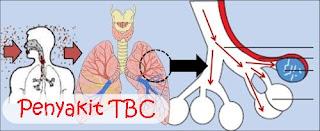 Lama pengobatan tb ekstra paru