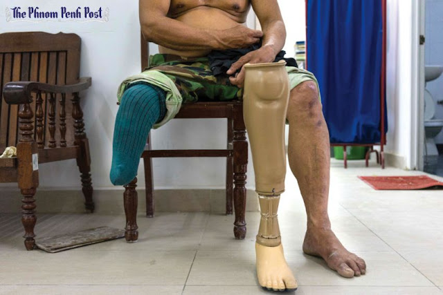 A man sits at a prosthetic workshop in Phnom Penh last year. The ICRC yesterday announced the launch of a mobile workshop in Siem Reap to repair prosthetics in the province. Charlotte Pert