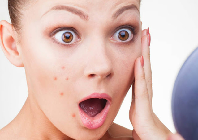 10 Signs You are not Drinking Enough Water, Pimples