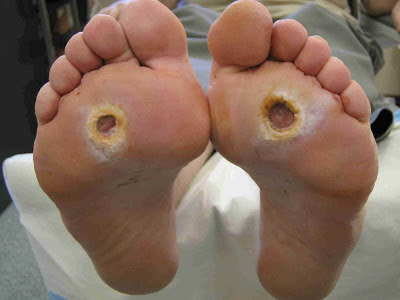 advices on Preventing Diabetic Foot Ulcers