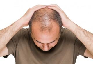 Hair Loss, Hair Grower, Hair Treatment