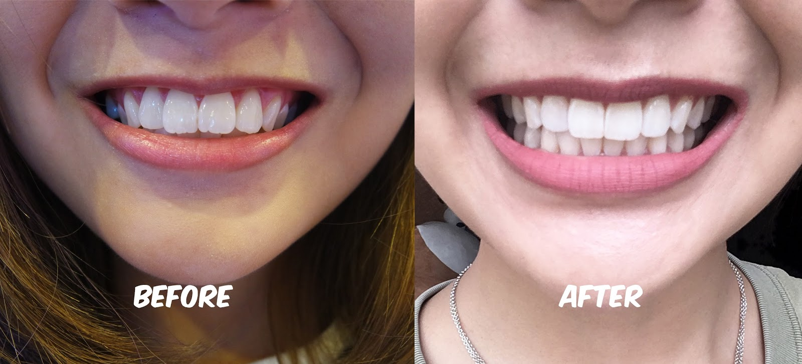 Get straight teeth - We Shaved Off The Uneven Bottom Outline Of My Two Front Teeth Leaving Me A Super Straight Looking Teeth
