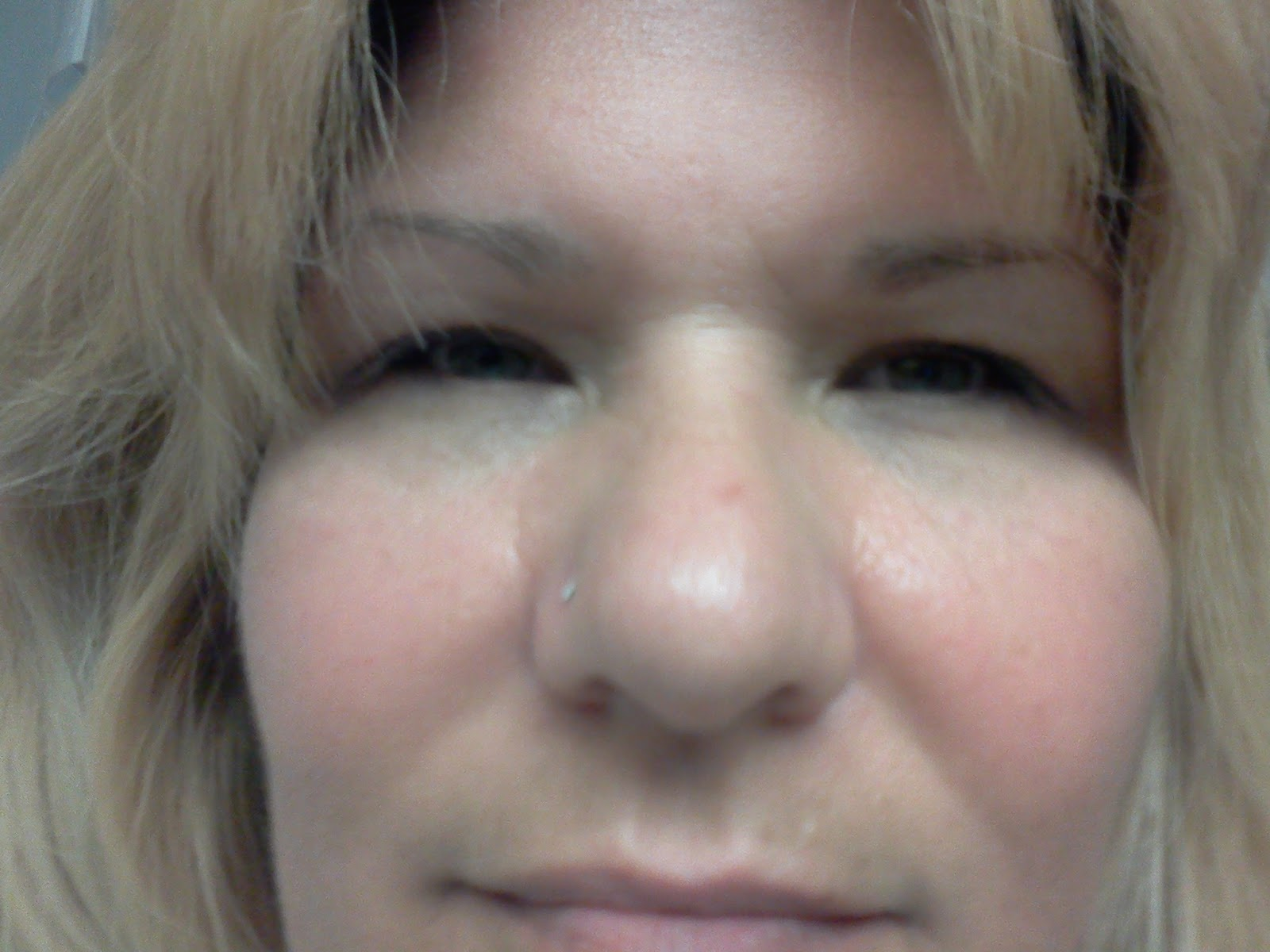 For benazepril side effects facial swelling
