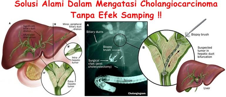Obat Tradisional Cholangiocarcinoma