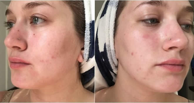 Skin Care Beauty Products Beauty And Style, Beauty Tips Beauty Treatment Women's Fashion Women's Trends Fashion Girls Should Avoid Pooping Up The Pimples for Skin Fashion