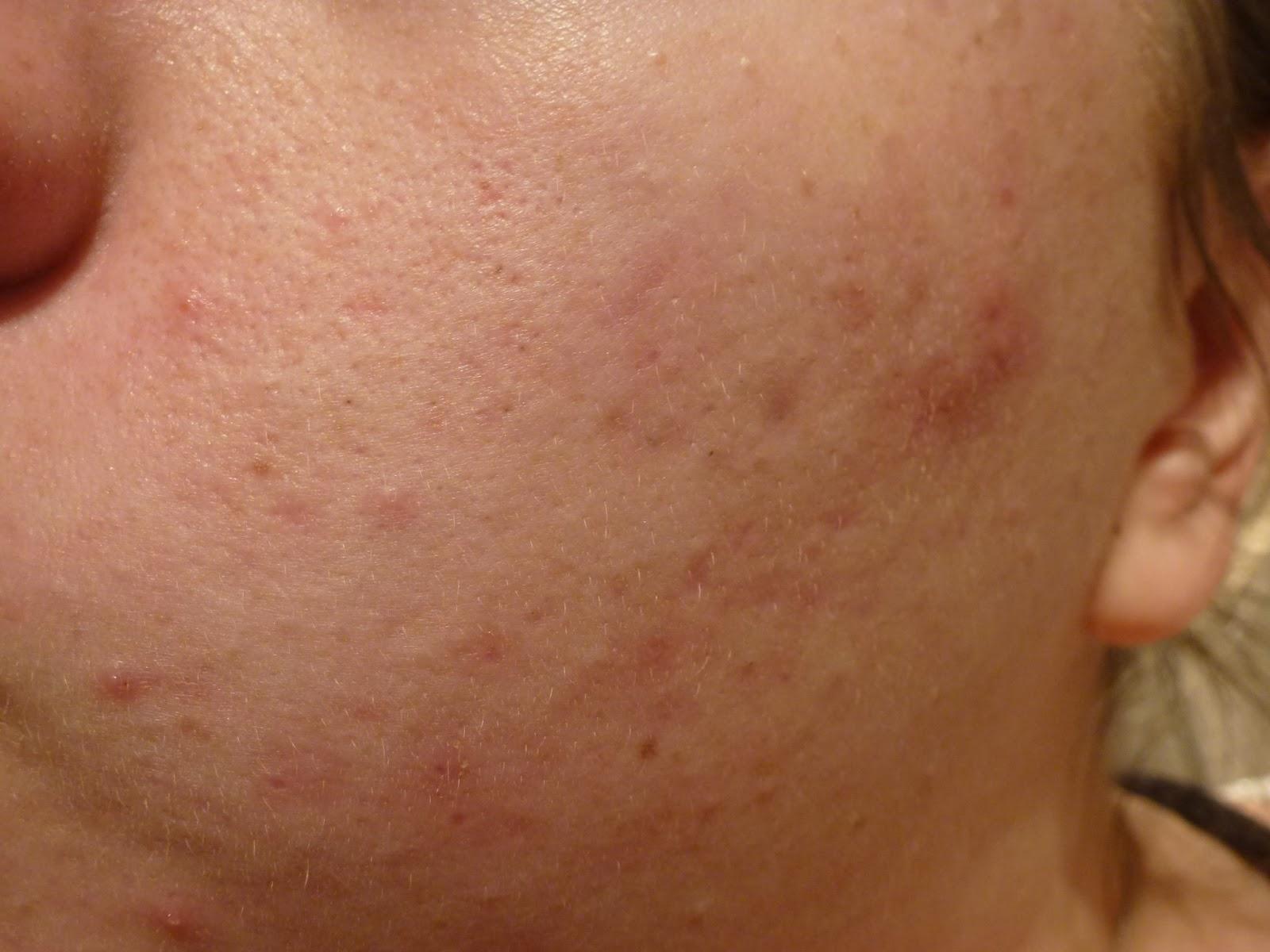 mildly-spotty-skin