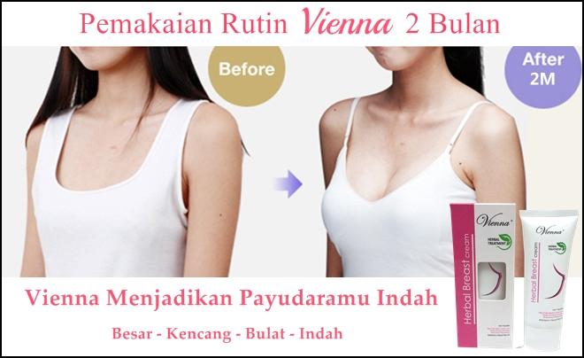 Hasil Pemakaian Bukti Vienna Breast Cream