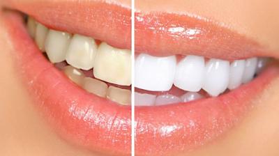 Ternyata Inilah Cara Alami Memutihkan Gigi Kuning Dengan Mudah