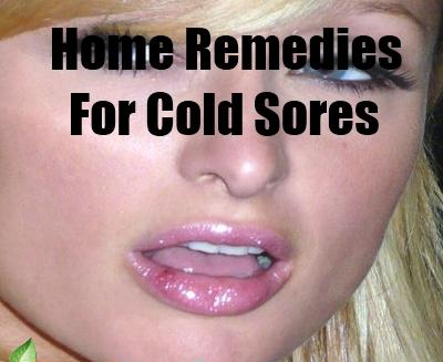Top Five Cold Sore Definition Medical / Fullservicecircus