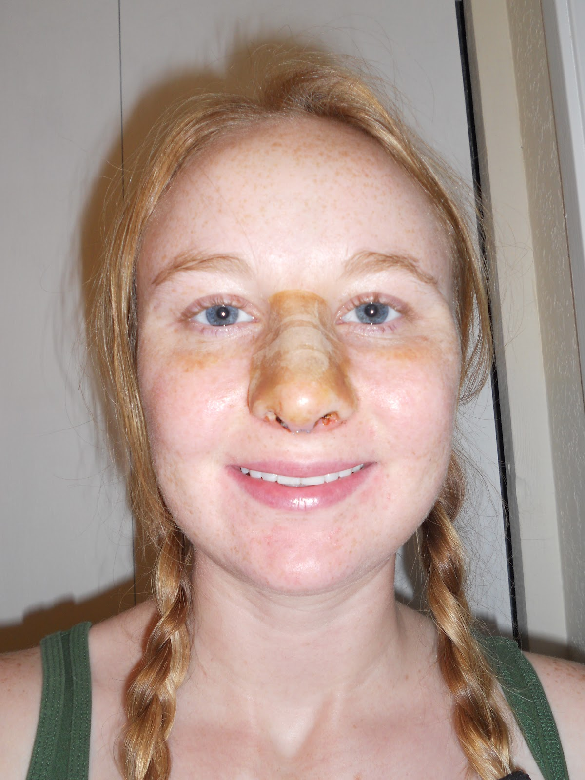 My Septoplasty and Me: September 2012