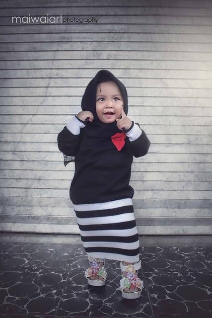 Cara Mengatasi Ketombe Pada Anak