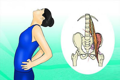 How to Unlock the Sciatic Nerve: 2 Simple Ways to Relieve Pain