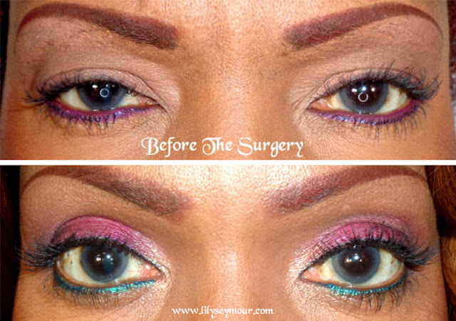 Blepharoplasty | Hooded Eyelid Surger