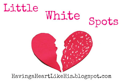 http://havingaheartlikehis.blogspot.com/2016/07/little-white-spots.html