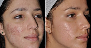 Isotretinoin, One Best Way on How To Remove Severe Acne