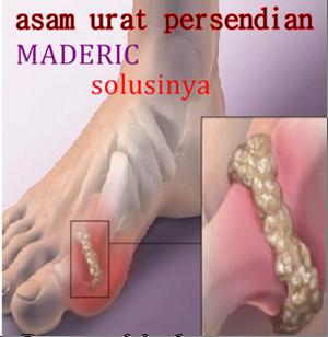 Obat herbal asam urat maderic