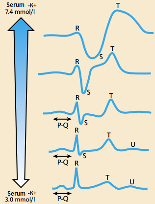 ECG-changes in potassium imbalance.