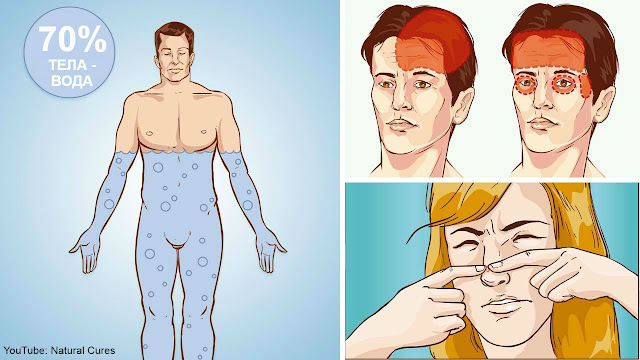 Вот 5 признаков, что вы пьете слишком мало воды. Не игнорируйте их!