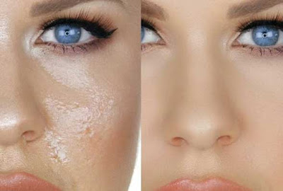 Benefits of ice cube for reducing your oily skin, Benefits of ice cube for skin
