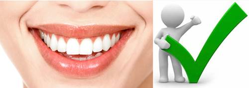 Lo bueno de hacerse un diseño de sonrisa