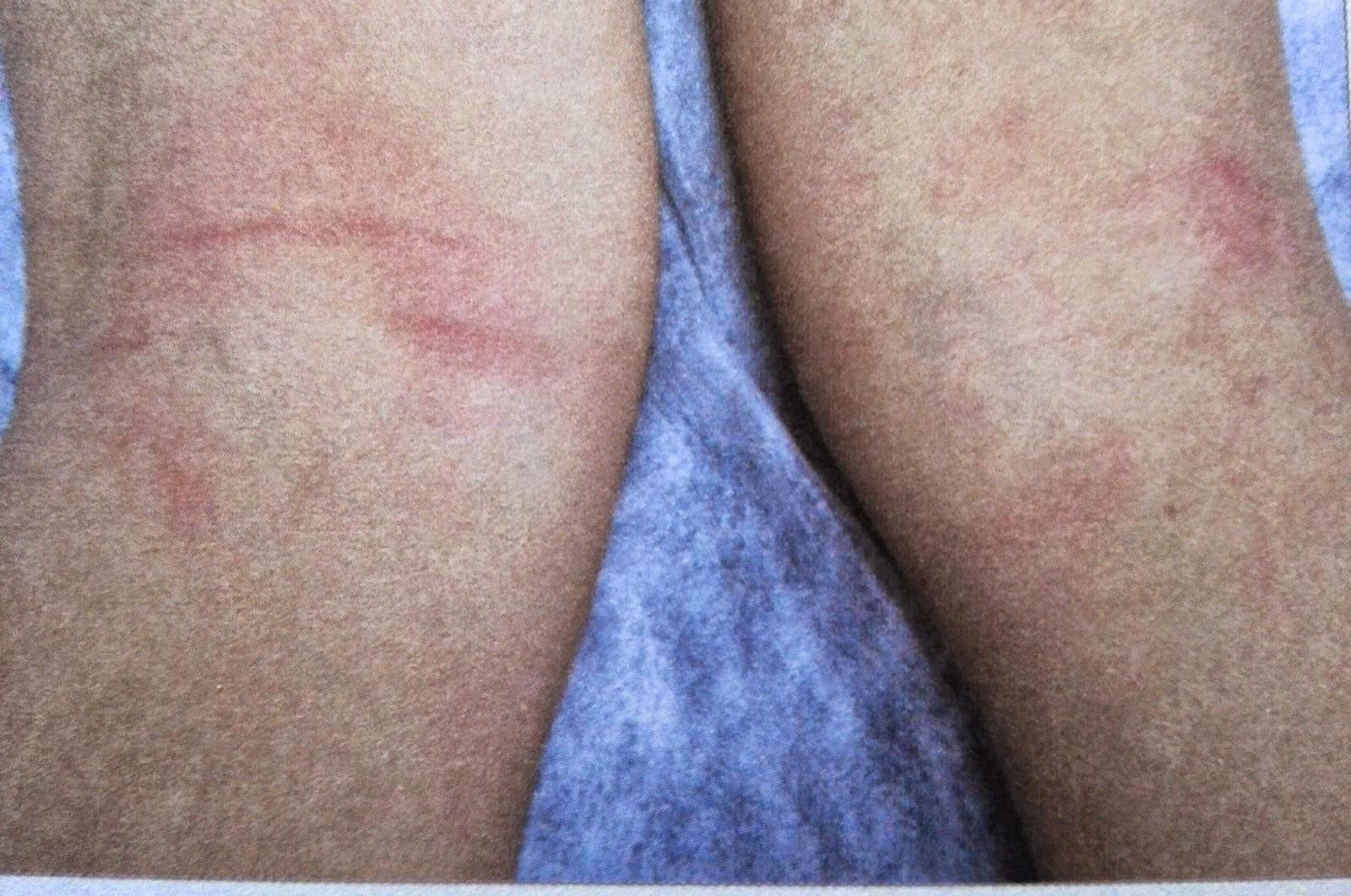 dermatitis atópica flexural
