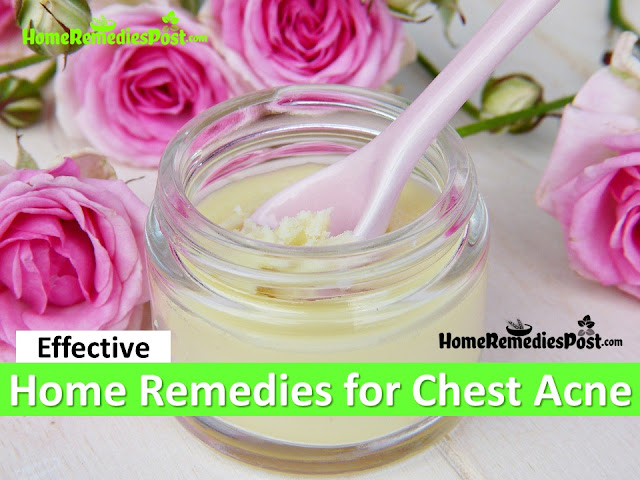 Clear Chest Acne overnight fast, how to Get Rid of chest Acne, How to Treat Chest Acne Fast, Home Remedies for chest Acne, Chest Acne Treatment, remove chest acne, how to Cure chest acne, Chest Acne Home Remedies, how to Cure Chest Acne Fast, Chest Acne Remedies,