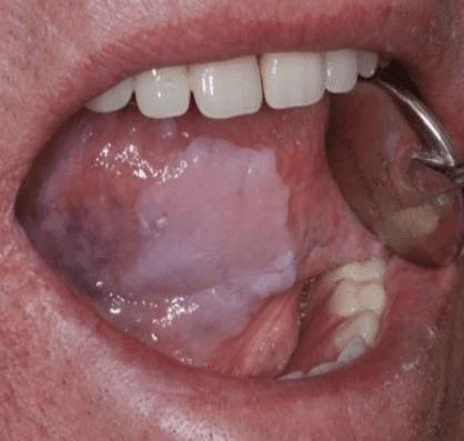 sintomas e tratamento da pneumonia