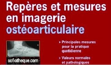 Repères et Mesures en iMagerie OstéoArticulaire PDF