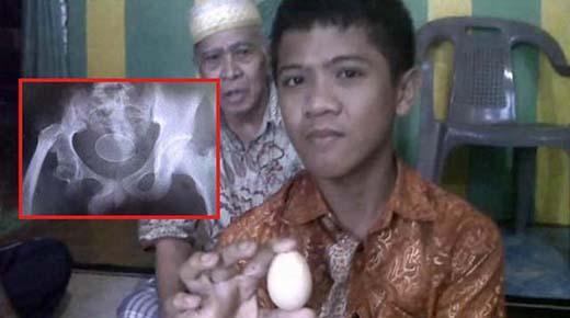 Adolescente afirma haber puesto 20 huevos en los últimos dos años