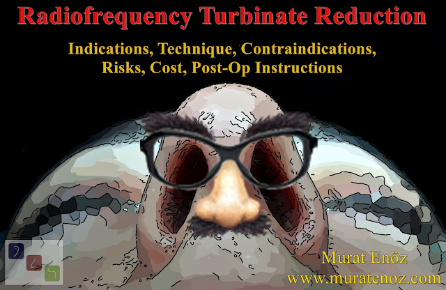 Radiofrequency Turbinate Reduction in Istanbul - Radiofrequency Turbinate Reduction in Turkey - Radiofrequency Turbinate Reduction Indications, Technique, Contraindications, Risks, Cost, Post-op Instructions - Turbinate Hypertrophy Treatment in Istanbul - Turbinate Hypertrophy Treatment in Turkey - Turbinate Radiofrequency in Istanbul - Turbinate Radiofrequency in Turkey