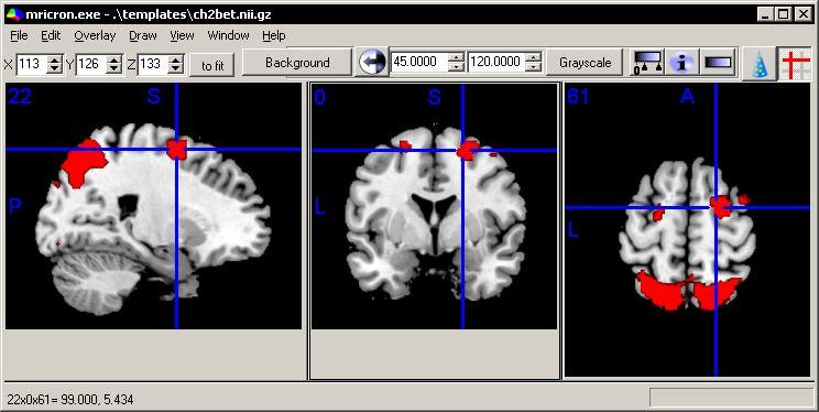 MRIcron is a cross-platform NIfTI format image viewer