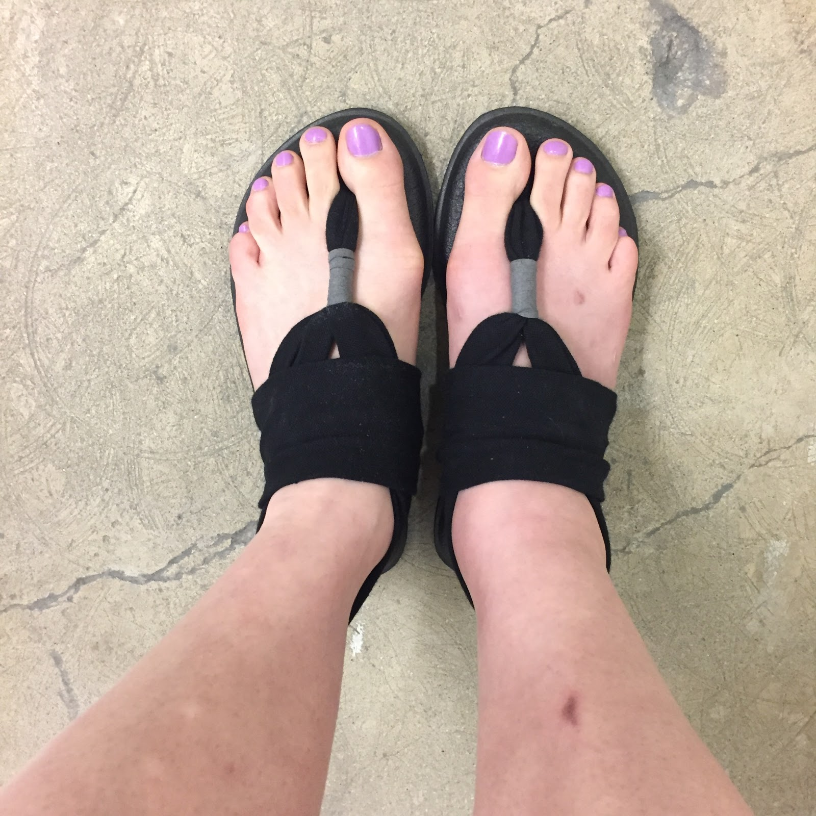 so cheap huge discount size 40 The Beauty of Life: Beautifying the Broken Ankle: A Little ...