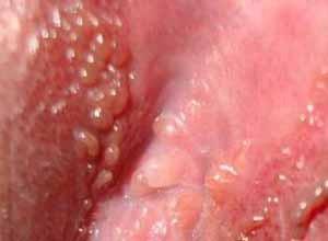 lubang vagina gatal dan cara mengobatinya yang alami