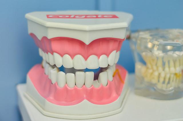 أهم إجراءات طب الأسنان التي تعالج وجع الأسنان