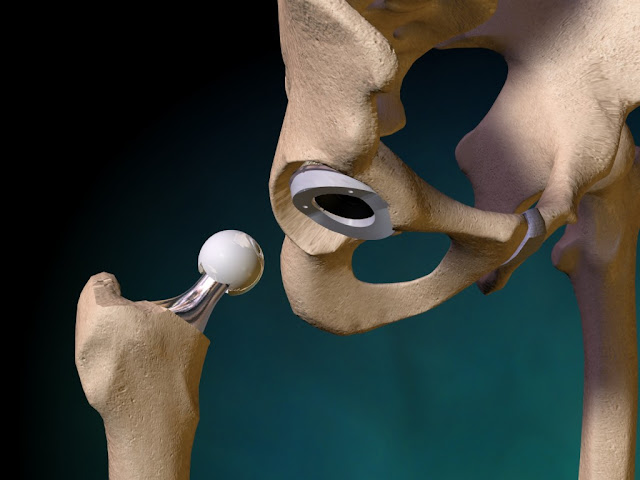 Major Complications Of Hip Replacement Surgery