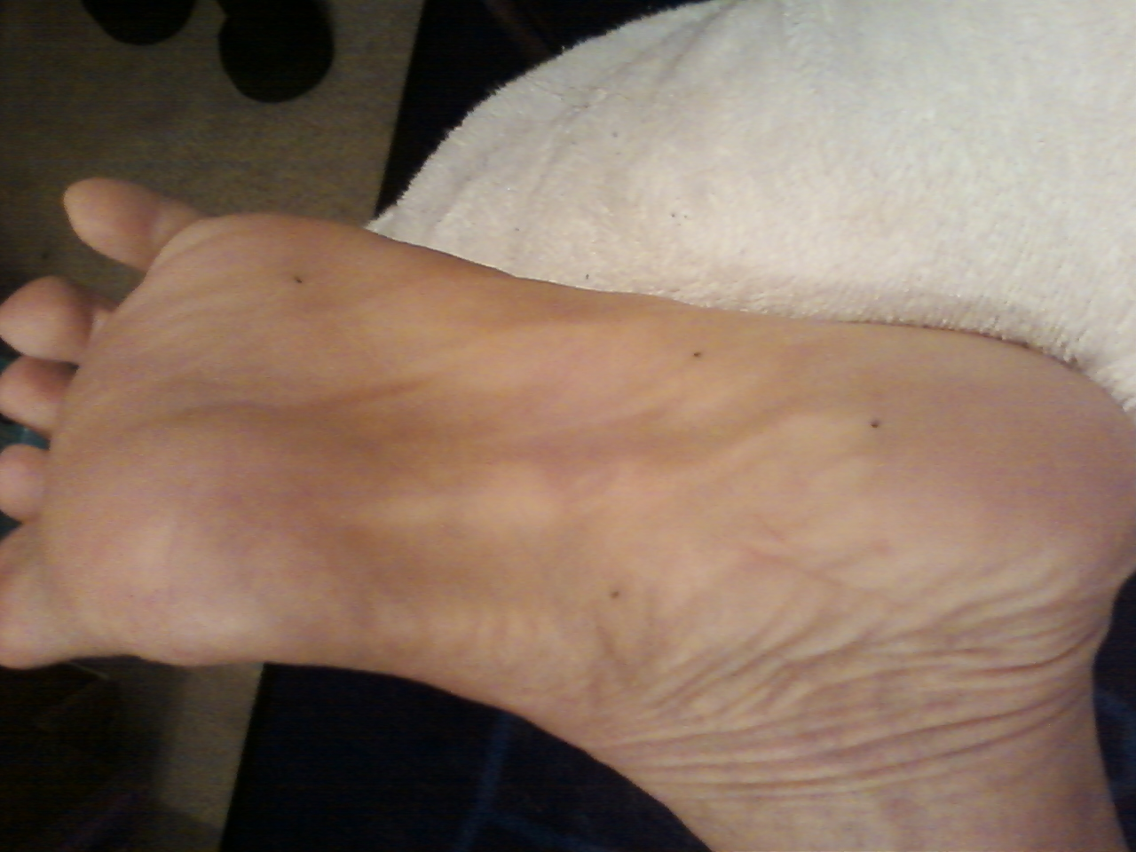 Plantar Fibroma Blog Usa Day 18 After Radiation