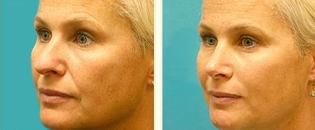 Eternally End Profound Nasal Folds Practicing Clever Mouth And Face Workouts