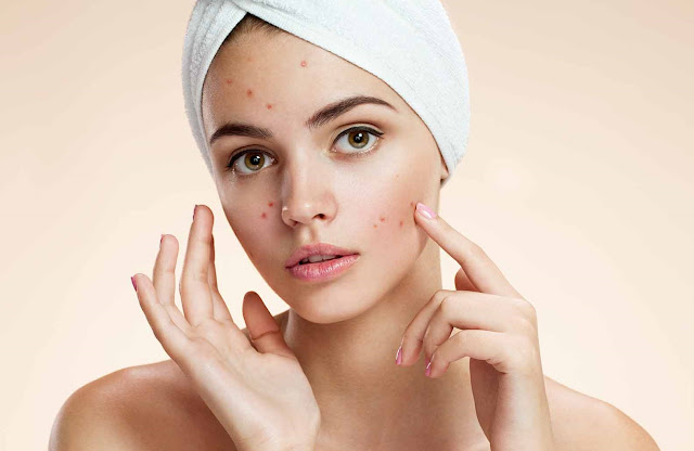 Acne Home Remedies That Work Overnight
